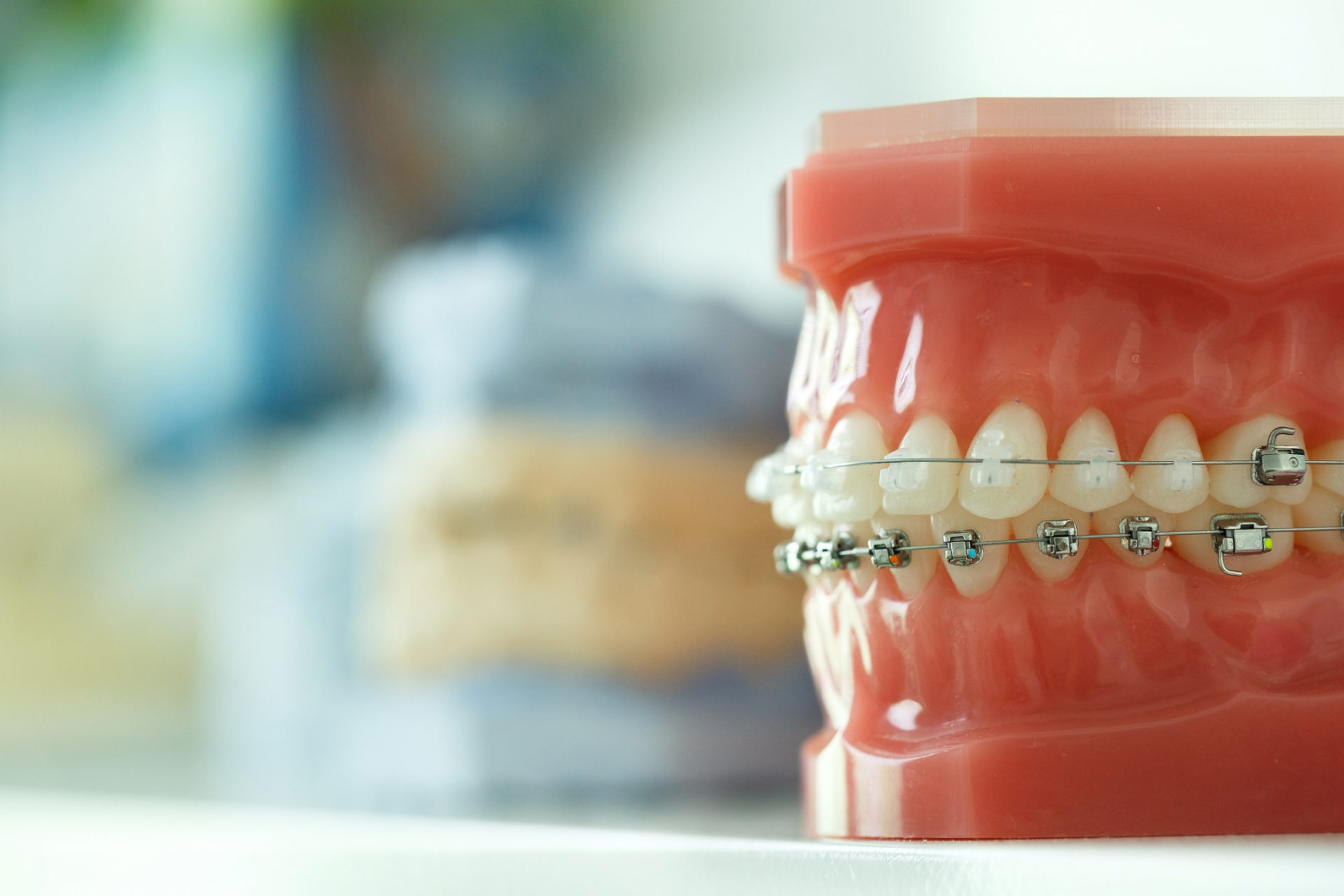 Table Of Orthodontics Practice Receiving Expert IT Support